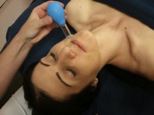 facial rejuvenation cupping